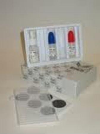 Εικόνα για την κατηγορία Αντιδραστήρια Latex - Latex kits